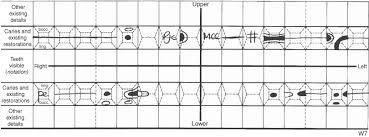 Palmer Notation Charting 13 Adult Restorative Dentistry Pocket Dentistry