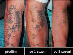 Search Results For Zákrok Page 2 Tetování Tattoo Kérkycz