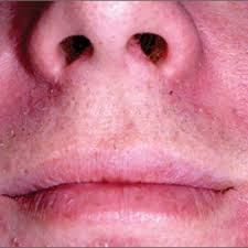 the great mimickers of rosacea mdedge