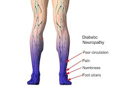 Image result for Diabetic neuropathy pictures