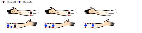 Tens Machine Pad Placement Chart Correct Placement For Your Tens Machines Electrode Pads