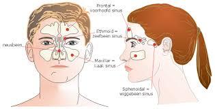 voorhoofdsholteontsteking symptomen