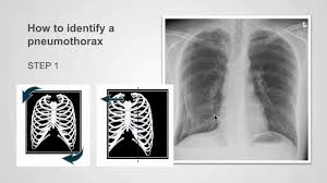 Pneumothorax X Ray How To Identify Pneumothorax On A Chest X Ray