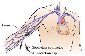 About Your Peripherally Inserted Central Catheter Picc