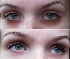 black circle and fatty deposit under eyes before after