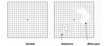 Eye Chart Test For Macular Degeneration Retina Boston Macular Degeneration Boston Neec