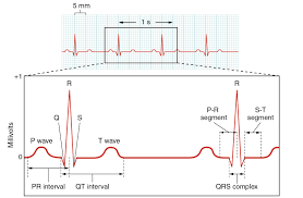 Ecg Chart Labeled Ecg Labeled Diagram 2022 Electrocardiogram Made By