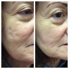 acne boxcar scars