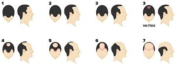 Norwood Scale Pictures Stages Causes And Treatment