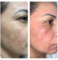Hyperpigmentation | Skin Essence A Day Spa