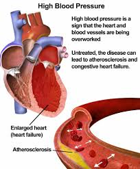 Blood Pressure Diagram High Blood Pressure Or Hypertension