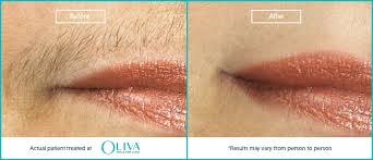 laser upper lip chin hair removal