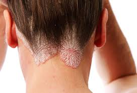 what is scalp psoriasis