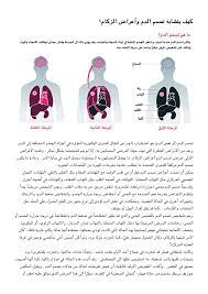 كيف يتشابه تسمم الدم وأعراض الزكام؟