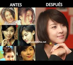 korean actress before and after plastic surgery actrices coreanas con cirugia plastica 15