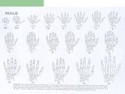 Bone Age Wrist Chart Normal Growth Dr Fatholahpour Pediatric Endocrinologist