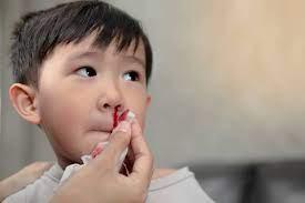 子供 鼻血 多い