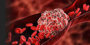 What is the blood clotting disorder the AstraZeneca vaccine has been linked  to?