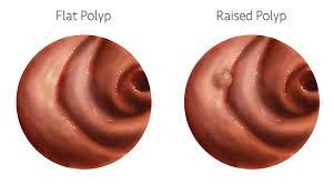 Image result for Polyp Biopsy