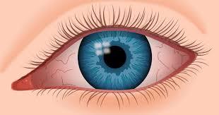 Pics Of Eyes Dry Eye And Keratoconus