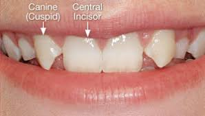 Image result for Central Incisors