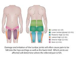 Pain Referral Patterns Awesome Backpainreferralpatterns Kinetesis Spine Joint Clinic