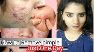 how to remove pimples overnight 5