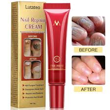 Fungus Stop, Nail Antifungal Treatment, Nail Fungus Treatments, Anti Fungus  Nail Treatment, Nail Care Treatment of Anti-Fungal Cream, Effective... on  OnBuy