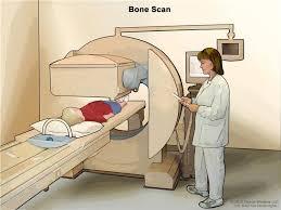 Ewing Sarcoma Treatment (PDQ®)–Patient Version - National ...