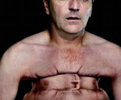 Resultado de imagen para imagenes de dolores en el pecho