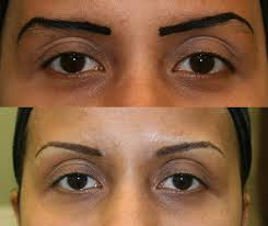 semi permanent makeup correction and removal