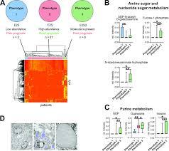Prognostic Relevance Of Steroid Sulfation In Adrenocortical