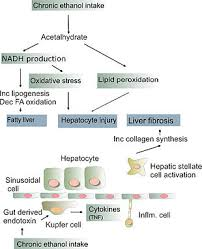 Pathophysiology Of Liver Cirrhosis In Flow Chart Alcoholic Liver Disease Wikipedia