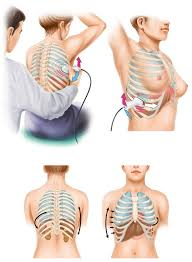 On each side of the chest seven ribs are connected with the. Diagnostics Free Full Text Lung And Intercostal Upper Abdomen Ultrasonography For Staging Patients With Ovarian Cancer A Method Description And Feasibility Study Html