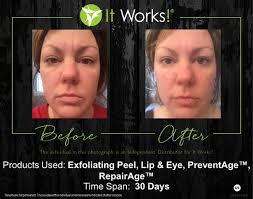 it works exfoliating peel before and after facial wrap and skin care before and afters to be healthy today