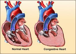 free images Congestive Heart Failure (CHF) साठी इमेज परिणाम