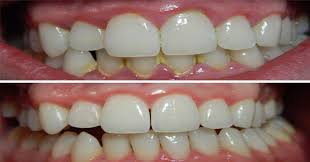 10 simple ways to easily remove tartar buildup without going to the dentist