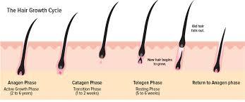 hair loss in men and women diagnosis