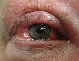 Allergic conjunctivitis - Wikipedia