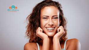 do braces invisalign change your face