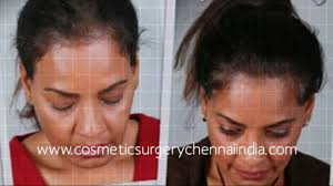 Male Or Female Pattern Baldness Treatments Simple How To Stop Hair Loss Laser Comb Male Pattern Baldness Hair