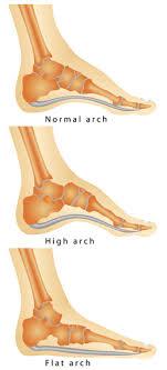 Flat Footed Flat Feet And Lower Back Pain Texas Orthopedics
