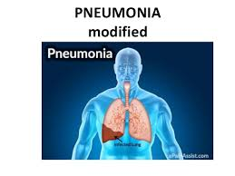 Image result for pneumonia