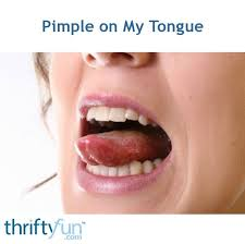pimple on my tongue thriftyfun
