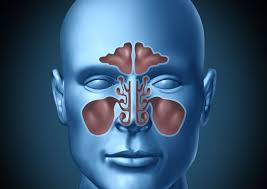 Image result for serious issues with your sinuses