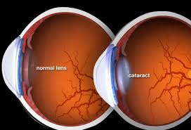 A Visual Guide to Cataracts
