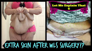 Graphic: Extra Skin After Weight Loss Surgery (Let Me Explain That ...