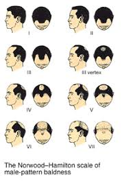 Male Pattern Baldness Causes Gorgeous Mens Hair Loss Causes Facts And Treatment Options Male Pattern