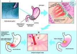 Язвенная болезнь у детей Диагностика язвенной болезни