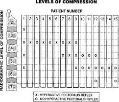 Spine Levels Chart Hyperactive Pectoralis Reflex As An Indicator Of Upper